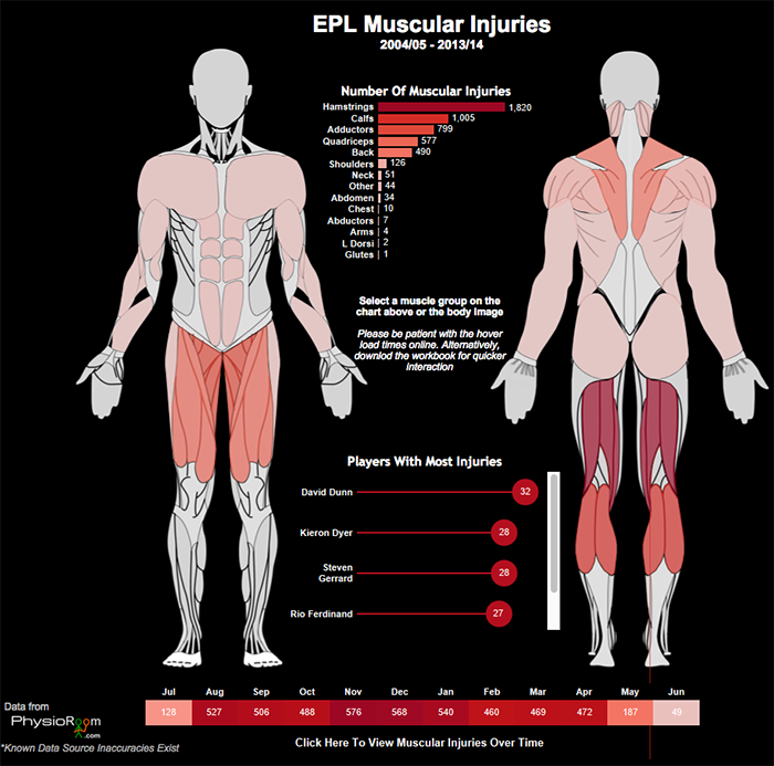 EPL 프리미어의 근육 부상